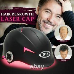 128 Diodes LLLT Device Hair Growth Regrowth Helmet Hair Loss Treatment Laser Cap